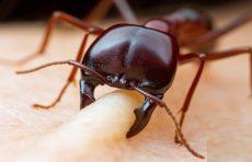 درمان گاز گرفتگی مورچه به کمک مواد طبیعی و ساده